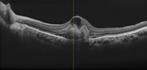 網膜断層像