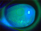 角膜上皮障害